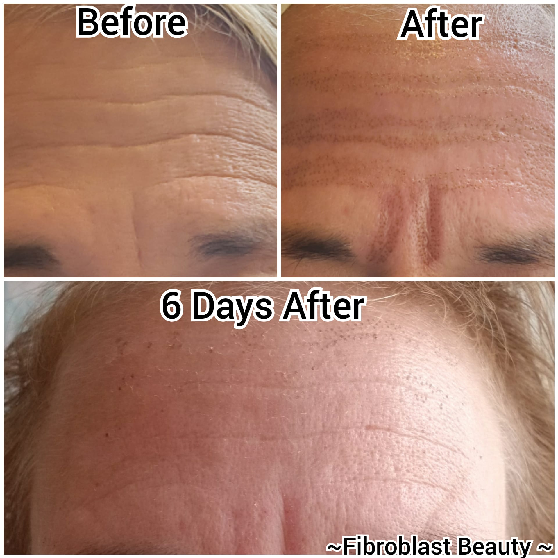 plasma fibroblast before and after