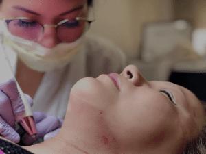 fibroblast clinics