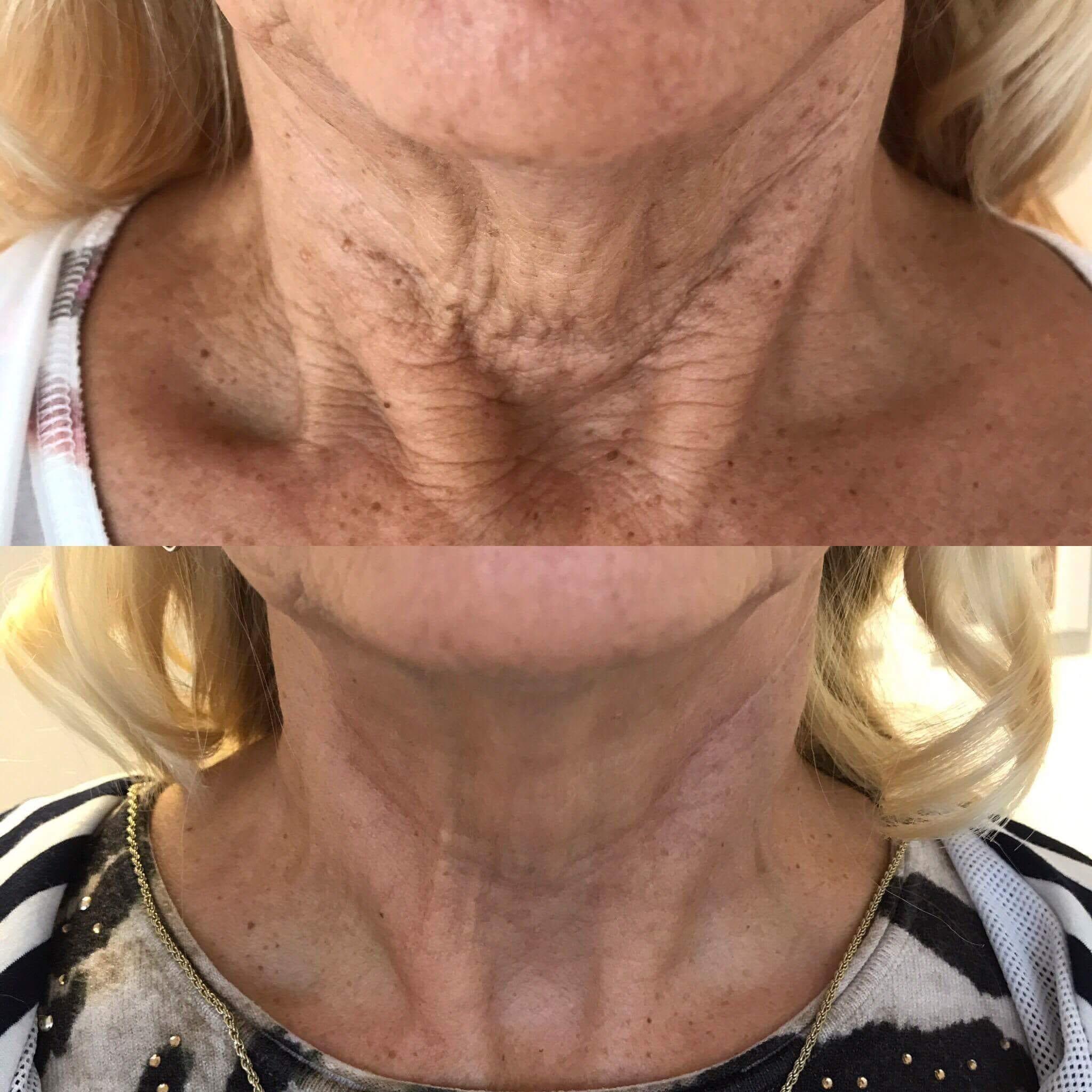 neck fibroblast