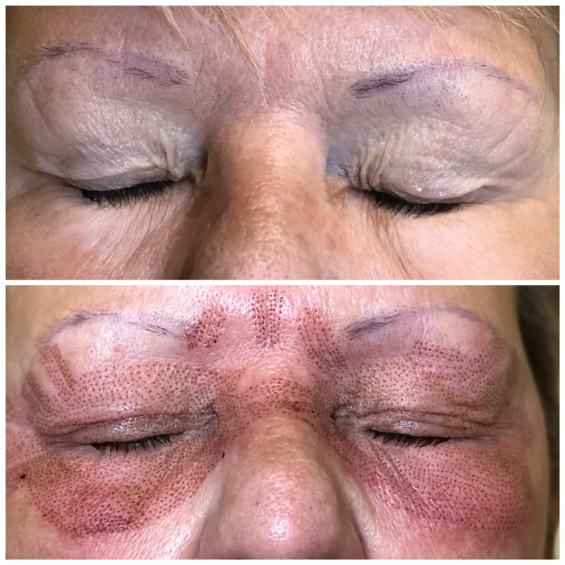 plasma pen treatment under eyes